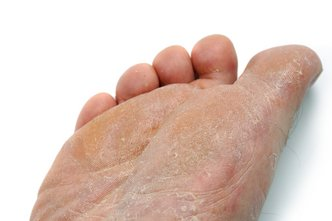 Smithville Podiatrist | Smithville Athlete's Foot | MO | Burkman Podiatry |